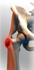 lateral hip